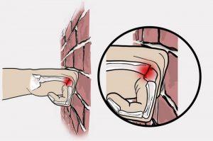Бокс - причина перелома 5 пястной кости