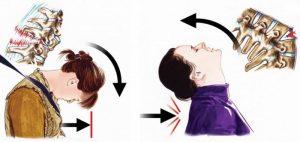 ДТП - причина перелома шеи