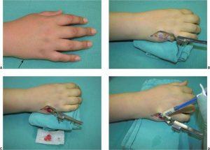 Хирургическое лечение перелома