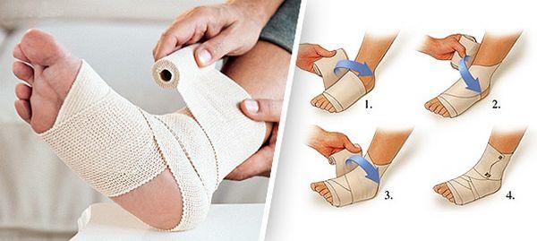 Срочная помощь при ушибе голеностопного сустава бандаж коленного сустава