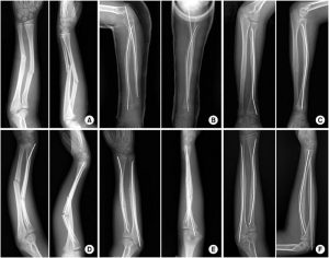 Локтевая и лучевая кости на рентгеновском снимке