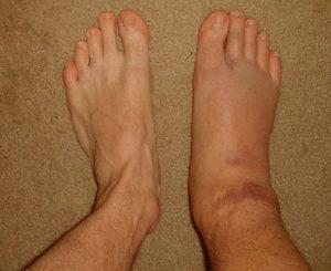 Отек ноги после перелома голеностопа