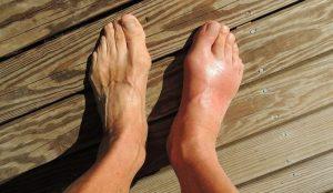 Отек ноги в щиколотке и стопе после перелома