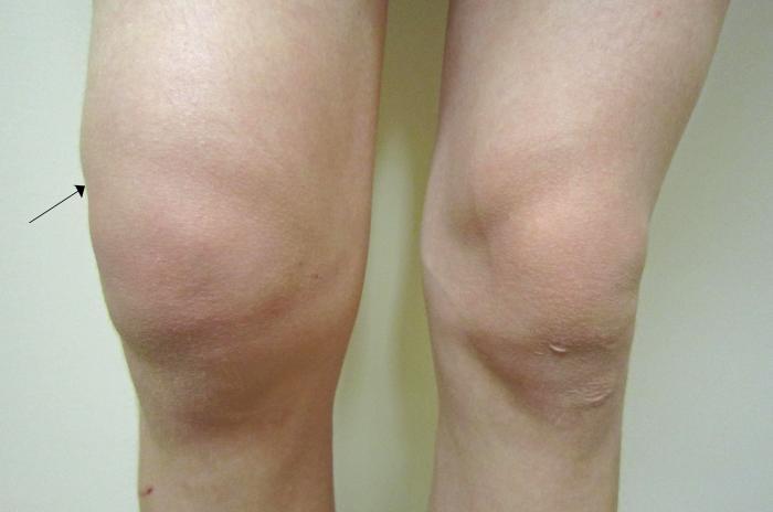 Отек - один из симптомов травмы колена