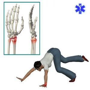 Падение – основная причина перелома лучезапястного сустава