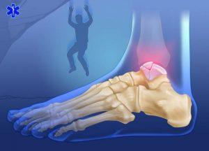 Падение с высоты - причина перелома таранной кости