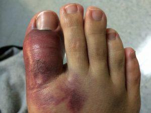 Пальцы ноги синеют и отекают при травме