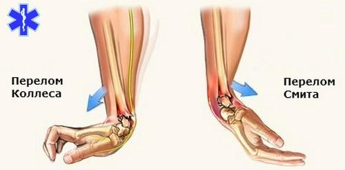 как я вылечила артроз коленного сустава
