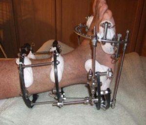 При тяжелых формах перелома, применяют компрессионный остеосинтез