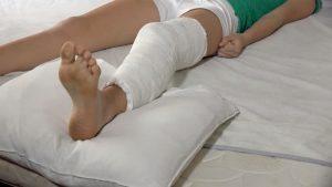 Перелом малоберцовой и большеберцовой кости: лечение и реабилитация