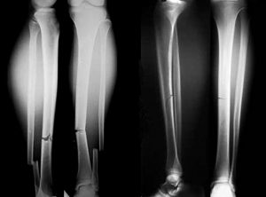 Рентген малой и большой берцовой кости при переломе