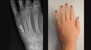 Рентгенограмма перелома