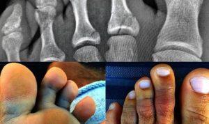 Рентгеновский снимок - основной метод диагностики перелома пальцев ноги