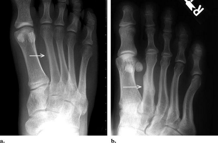 Перелом плюсневой кости стопы: симптомы, лечение, реабилитация