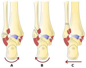 Типы смещения голеностопного сустава