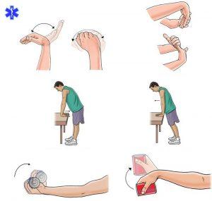 Упражнения для восстановления работоспособности кисти