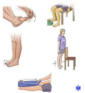 Упражнения для восстановления работоспособности пальцев ноги после перелома