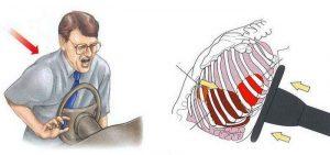 ДТП причина перелома ребер и грудины