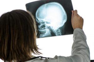 Диагностика перелома основания черепа на рентгене