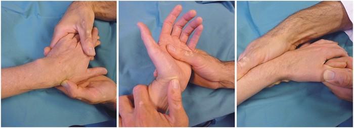 Диагностика вывиха костей запястья с помощью пальпации
