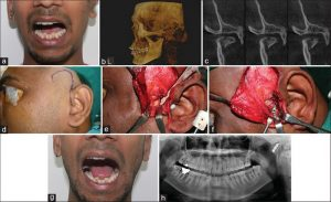 Хирургическое лечение нижней челюсти