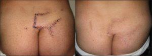 Хирургическое лечение перелома копчика