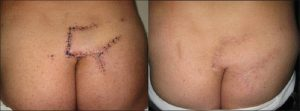 Хирургическое лечение перелома крестцаХирургическое лечение перелома крестца