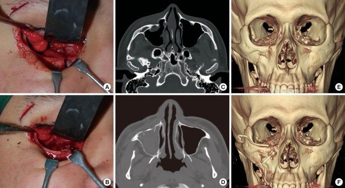 Хирургическое лечение перелома скуловой кости
