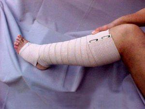Использование удерживающей повязки при лечении