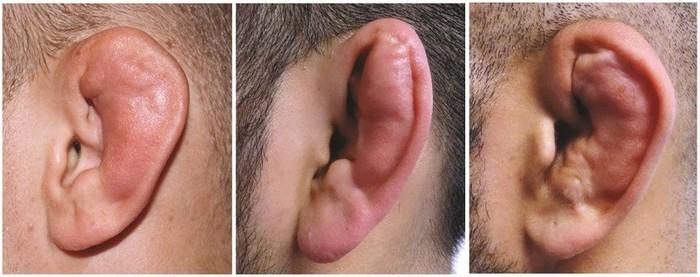 Классификация переломов уха