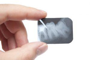 На рентгеновском снимке отчетливо видна корневая система