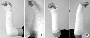 Наложение гипса при переломе лучевой кости