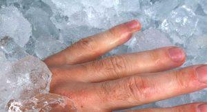 Охлаждение ушибленной ногтевой пластины с помощью льда