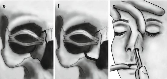 Оперативное лечение перелома глазницы