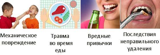 Основные причины вывих зуба