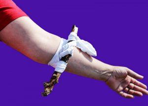Особенности оказания помощи при травме, с артериальным кровотечением