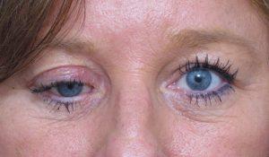 Особенности перелома глазницы