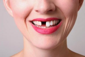Особенности перелома зуба