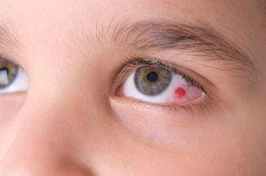 Особенности ушиба глаза