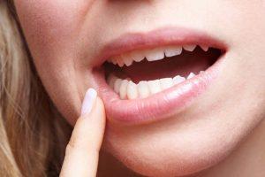 Особенности ушиба губы