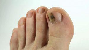 Особенности ушиба ногтя на ноге