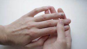 Особенности ушиба ногтя на руке