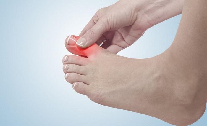 Особенности вывиха пальца на ноге
