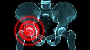 Особенности вывиха тазобедренного сустава