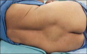 Отек - один из симптомов травмы крестца
