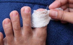 Первая помощь при ушибе ногтя на ноге