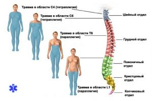 Поражения при травмах спинного мозга