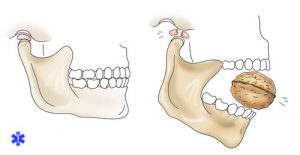 Причины вывиха нижней челюсти