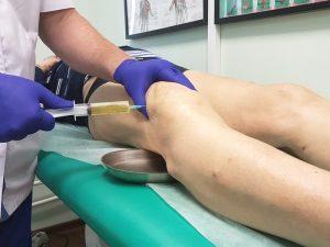 Пункция коленного сустава для извлечения сгустков крови