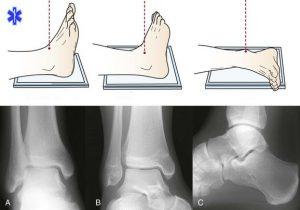 Рентгенологическое исследование лодыжки